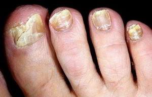 Деформирование и крошение ногтей на ногах