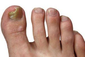 Как свести ноготь на пальце ноги