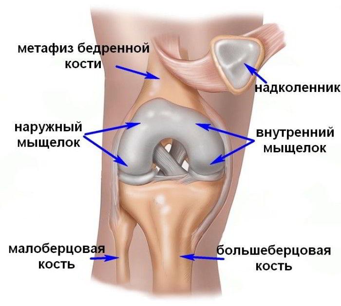 Изображение - Мыщелок коленного сустава лечение perelom_myschelka_kolena_1-e1422205810737