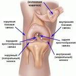 Перелом мыщелка колена