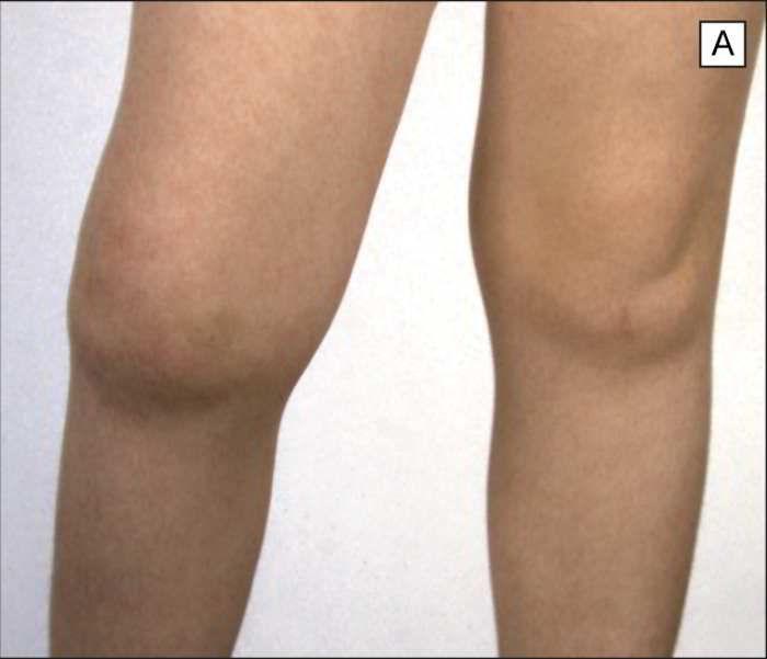 артрит суставов у детей лечение