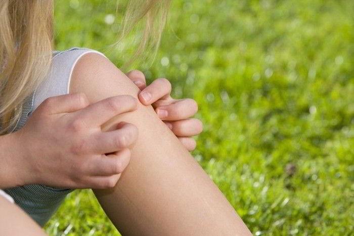 Синовит коленного сустава — Суставы