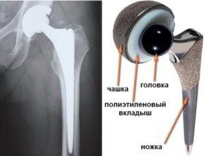 Техника проведения эндопротезирования