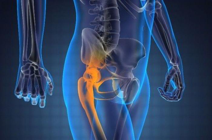 От чего может появиться боль в области тазобедренного сустава