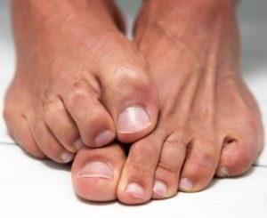 Грибок ногтя запущенной формы