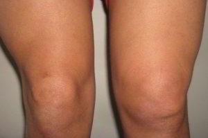 Отёчность коленного сустава
