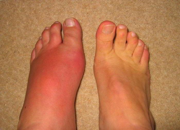 подагрический артрит лечение дома