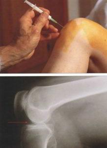 Реактивный синовит коленного сустава что это такое причины симптомы лечение