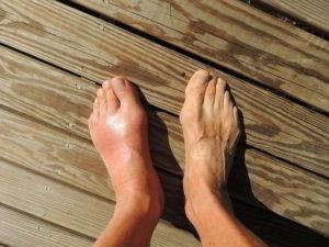 Воспаление суставов стопы