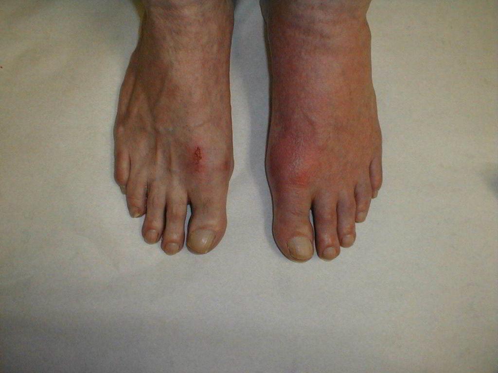 Подагрический артрит симптомы диета и как лечить подагрический артрит
