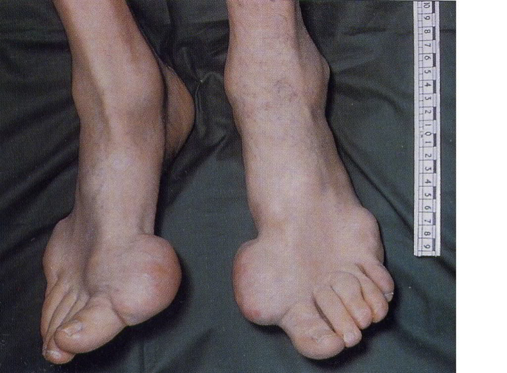 Болезнь ног картинки
