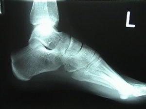 Рентгеновское исследование стопы
