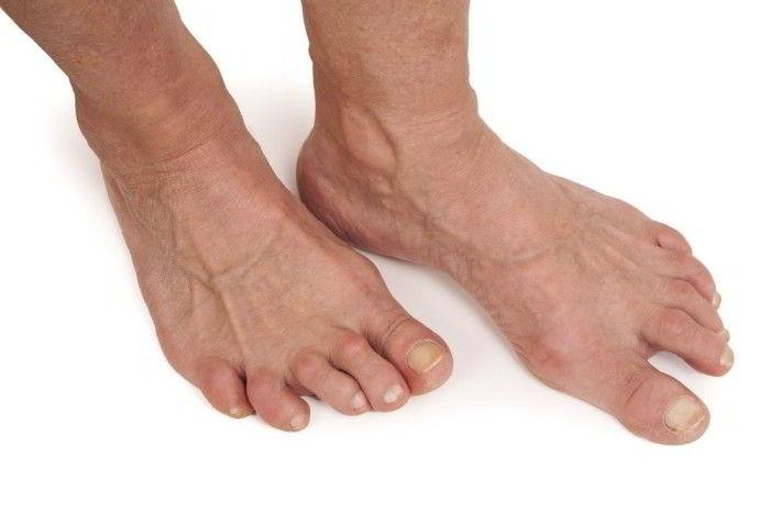Артрит стопы причины симптомы лечение и диета (фото)