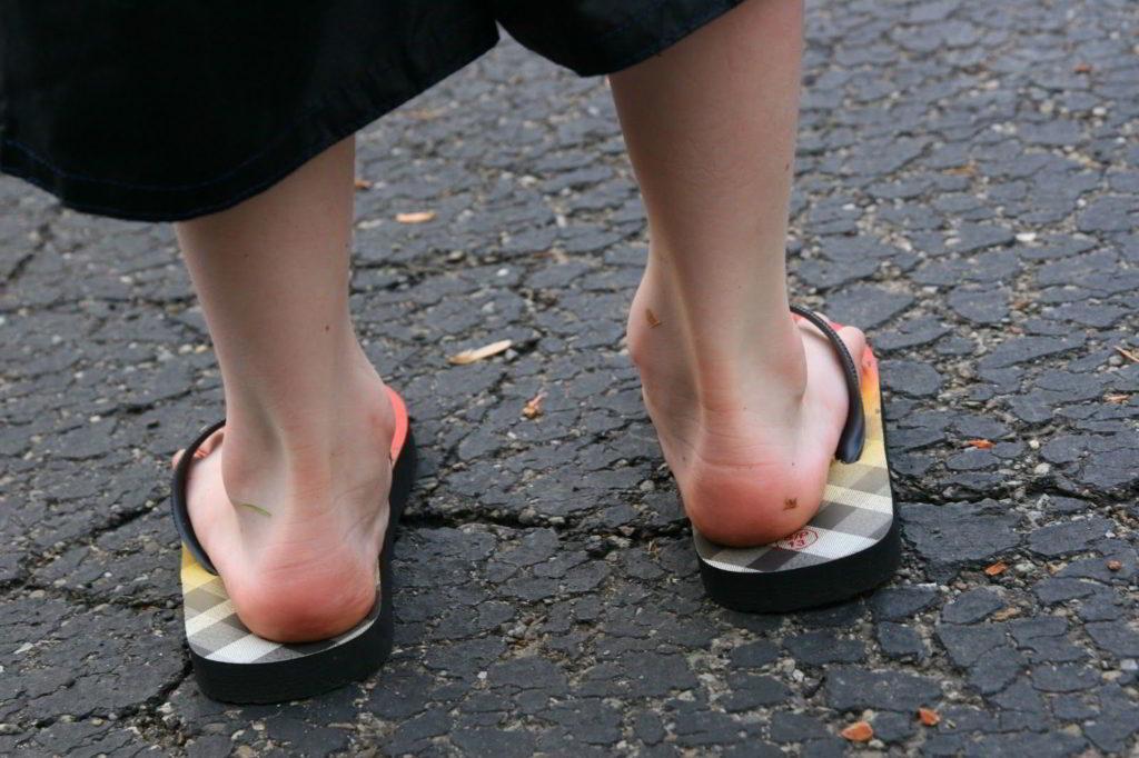Артрит ног: лечение симптомы и фото