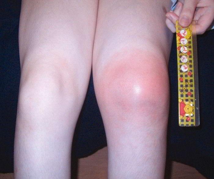 Бубновский как лечить артрит