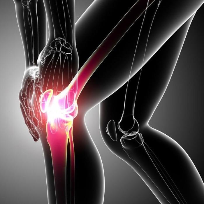 Как лечить разрыв связок коленного сустава