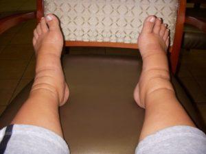 Отечность ног признак тромбоза глубоких вен