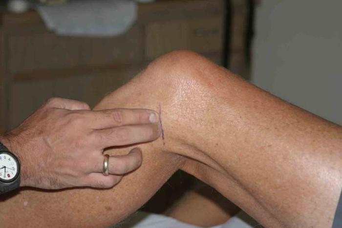 Частичный разрыв мениска коленного сустава