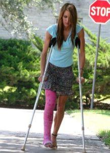 Гипс на коленном суставе
