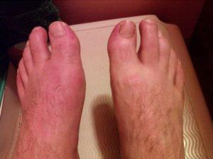 Покраснение при подагре на ногах