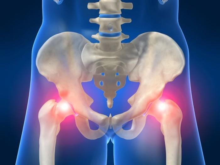 Лечение трохантерита тазобедренного сустава