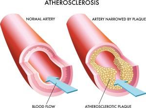 Сужение артерий ног