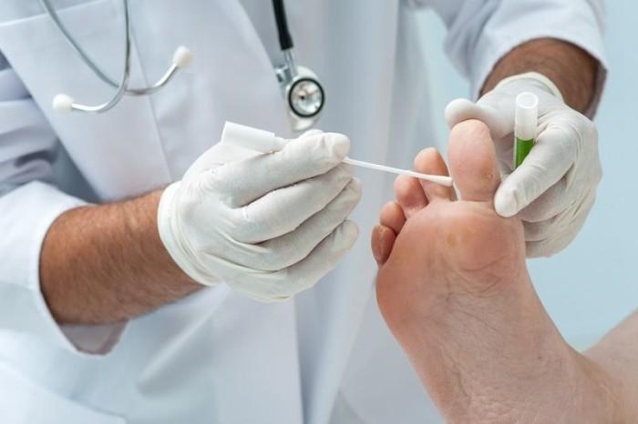 Как начинается грибок на пальцах ног