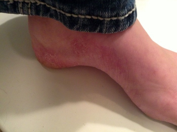 Сыпь на ногах чешется: чем лечить и как снять зуд