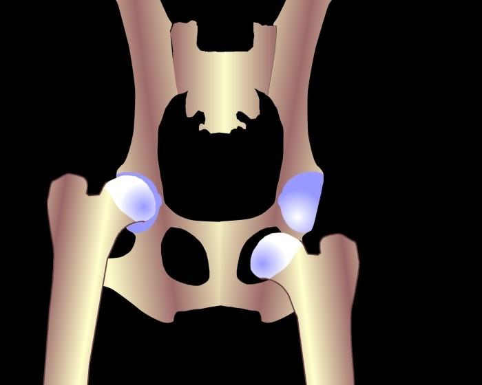 Вывих бедра у взрослых симптомы подвывиха тазобедренного сустава лечение как вправить