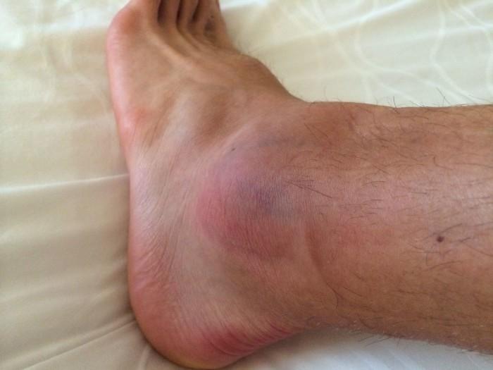 артрит лодыжки лечение