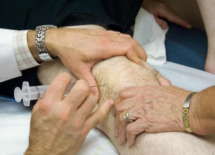 Блокада в коленный сустав