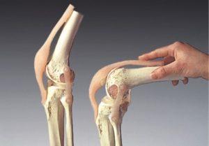 экзостоз коленного сустава